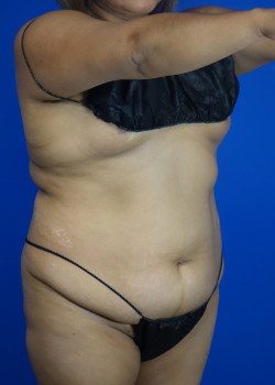 Drainless Tummy Tuck