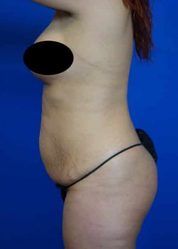 Drainless Tummy Tuck with Liposuction
