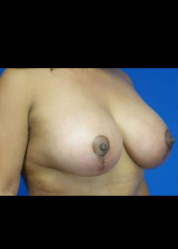 Breast Aumentation with Mastopexy (Breast Lift)