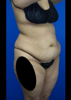 Drainless Tummy Tuck and Liposuction